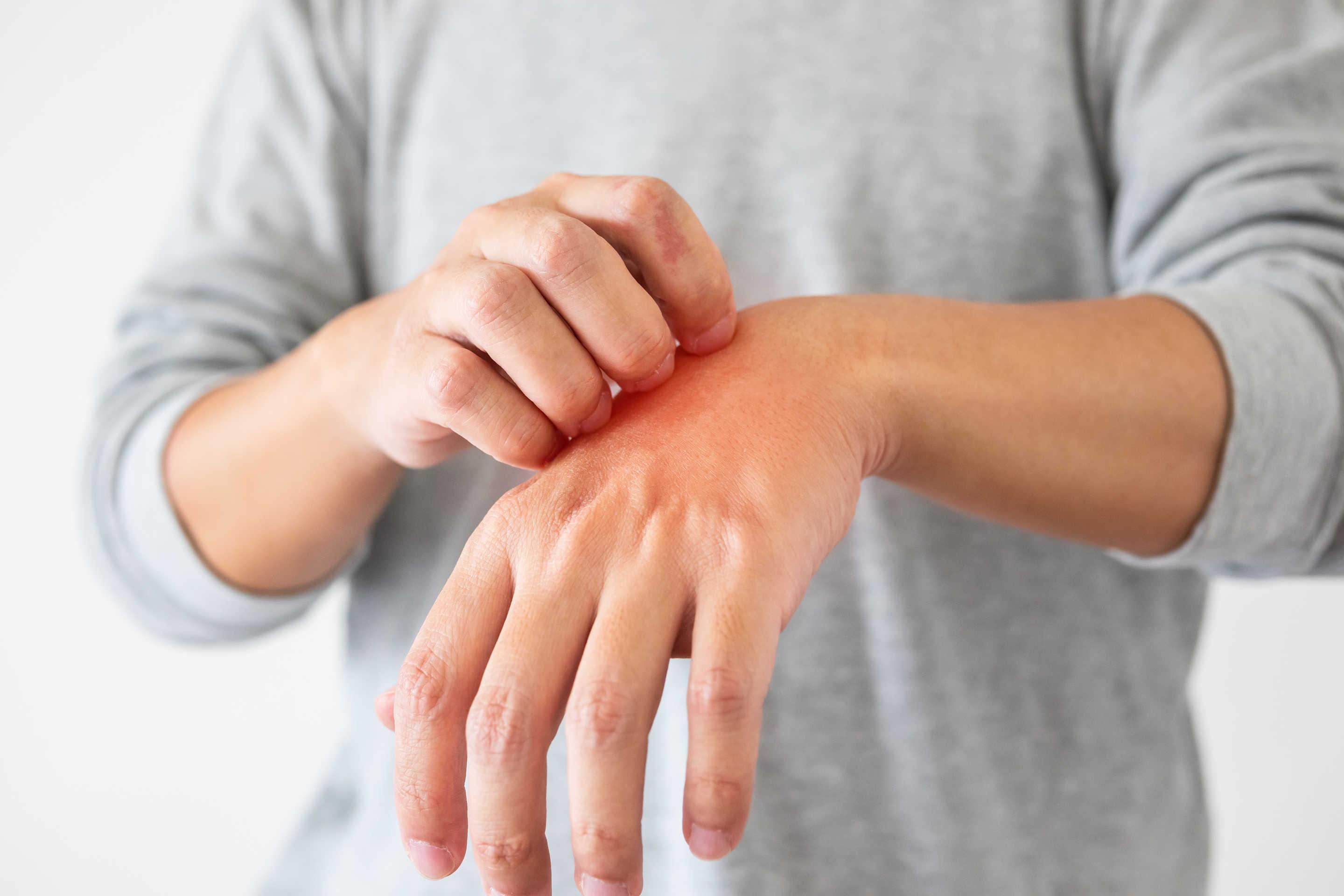 Hombre con urticaria en la mano